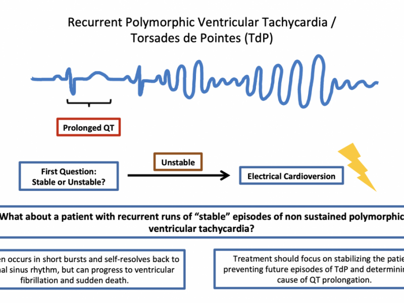 Back to Basics: Recurrent Polymorphic VT/Torsades de Pointes